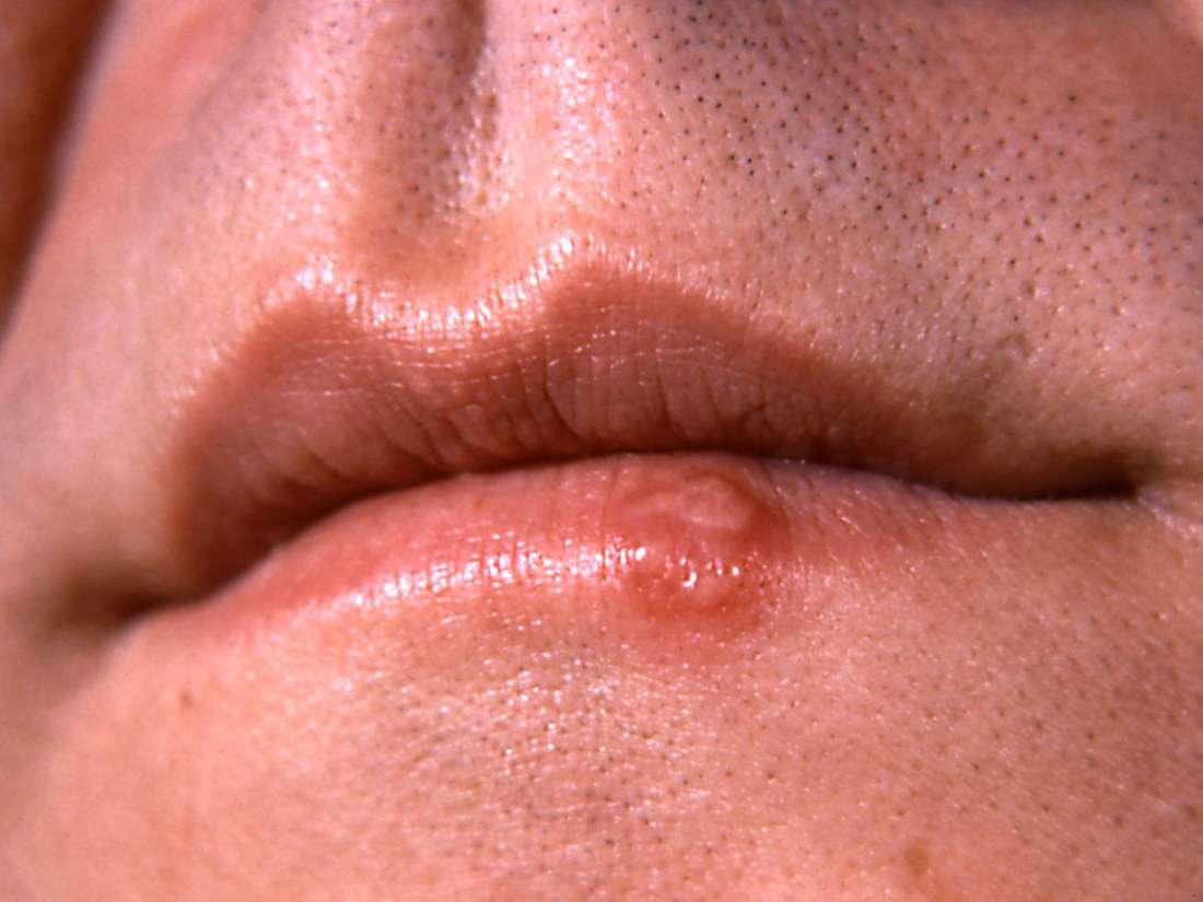 Come diventare una gola profonda: 5 step da seguire